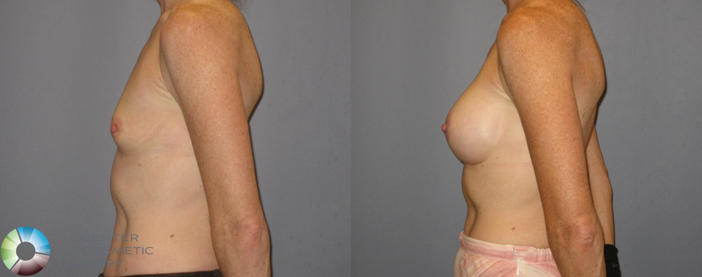 Breast Augmentation Case 185 Before & After View #2 | Golden, CO | The Center for Cosmetic Surgery