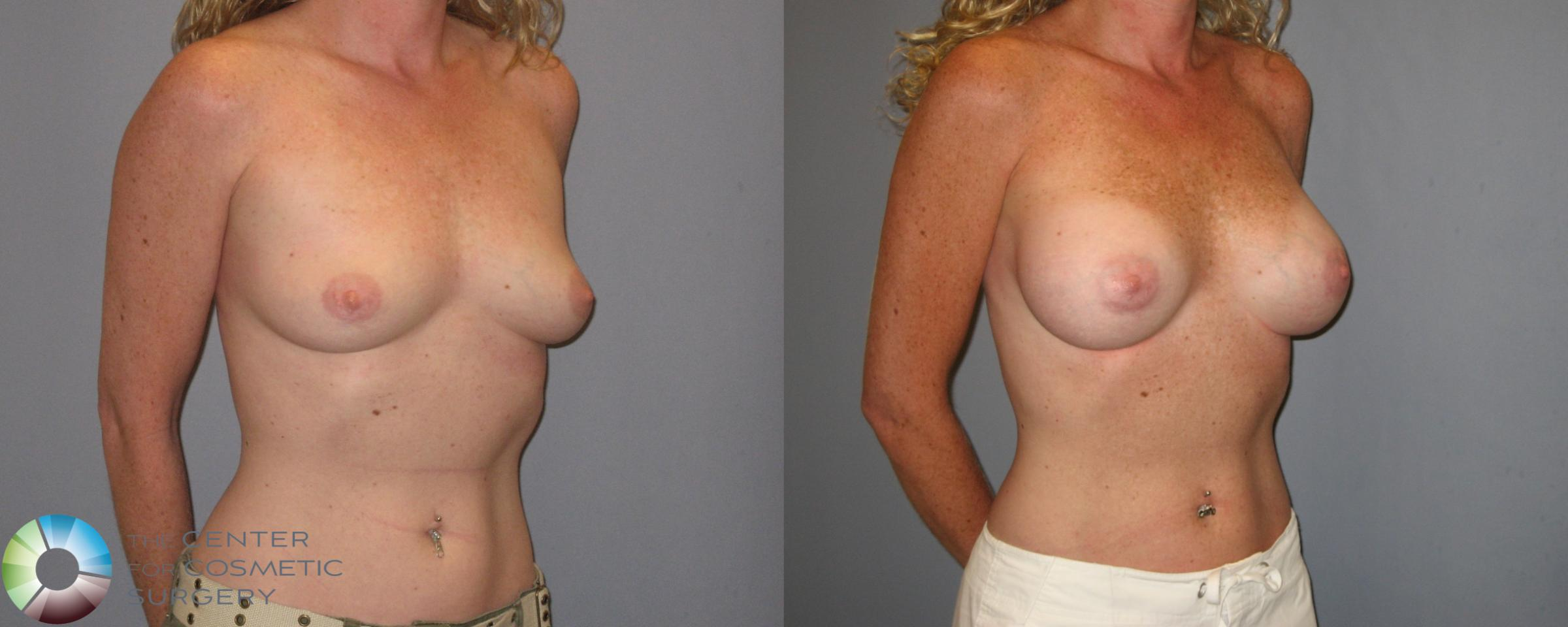 Breast Augmentation Case 186 Before & After View #1 | Golden, CO | The Center for Cosmetic Surgery