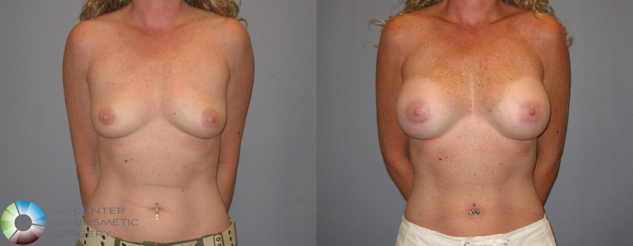 Breast Augmentation Case 186 Before & After View #2 | Golden, CO | The Center for Cosmetic Surgery
