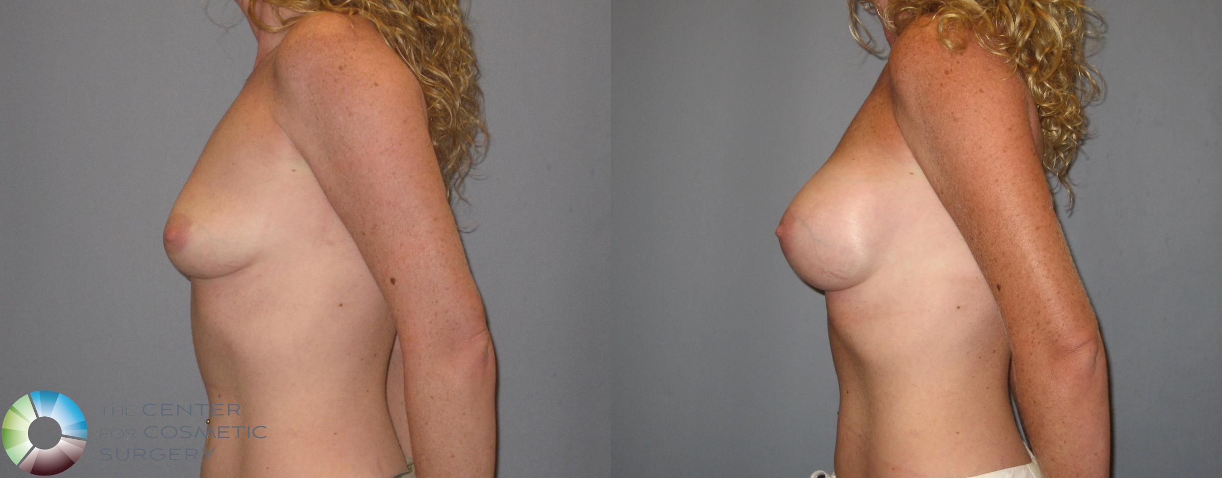 Breast Augmentation Case 186 Before & After View #3 | Golden, CO | The Center for Cosmetic Surgery