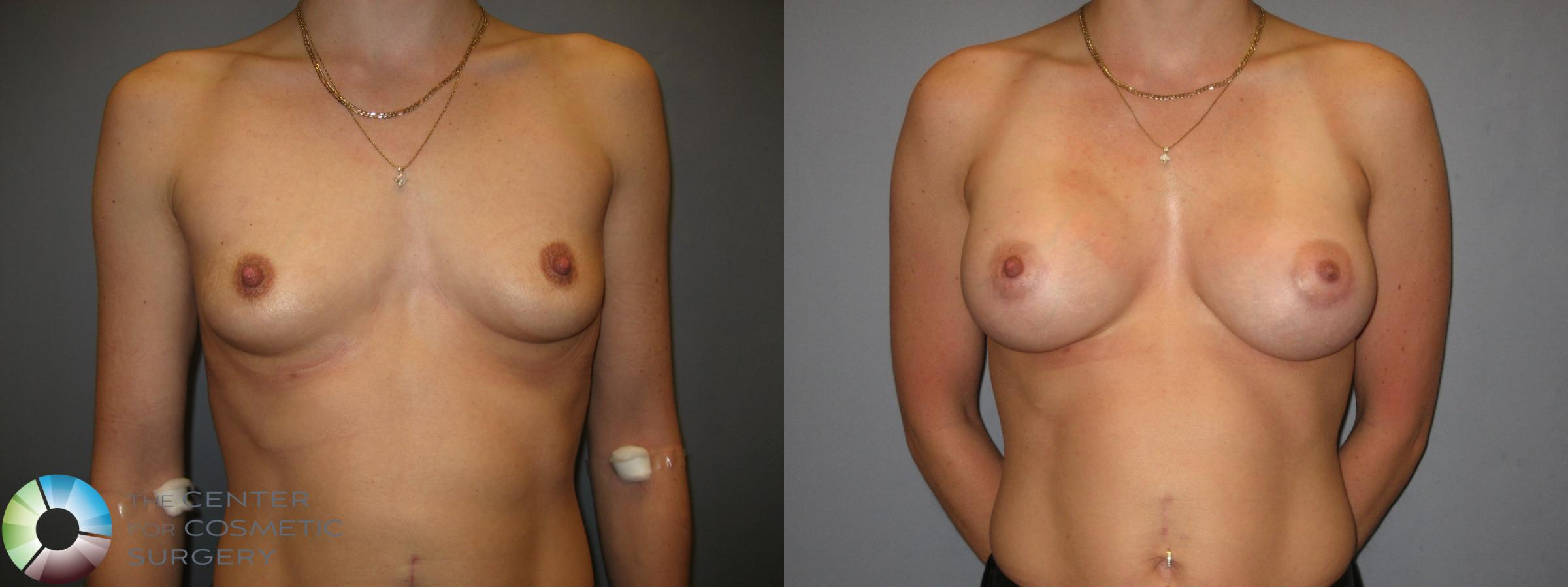 Breast Augmentation Case 208 Before & After View #1 | Golden, CO | The Center for Cosmetic Surgery