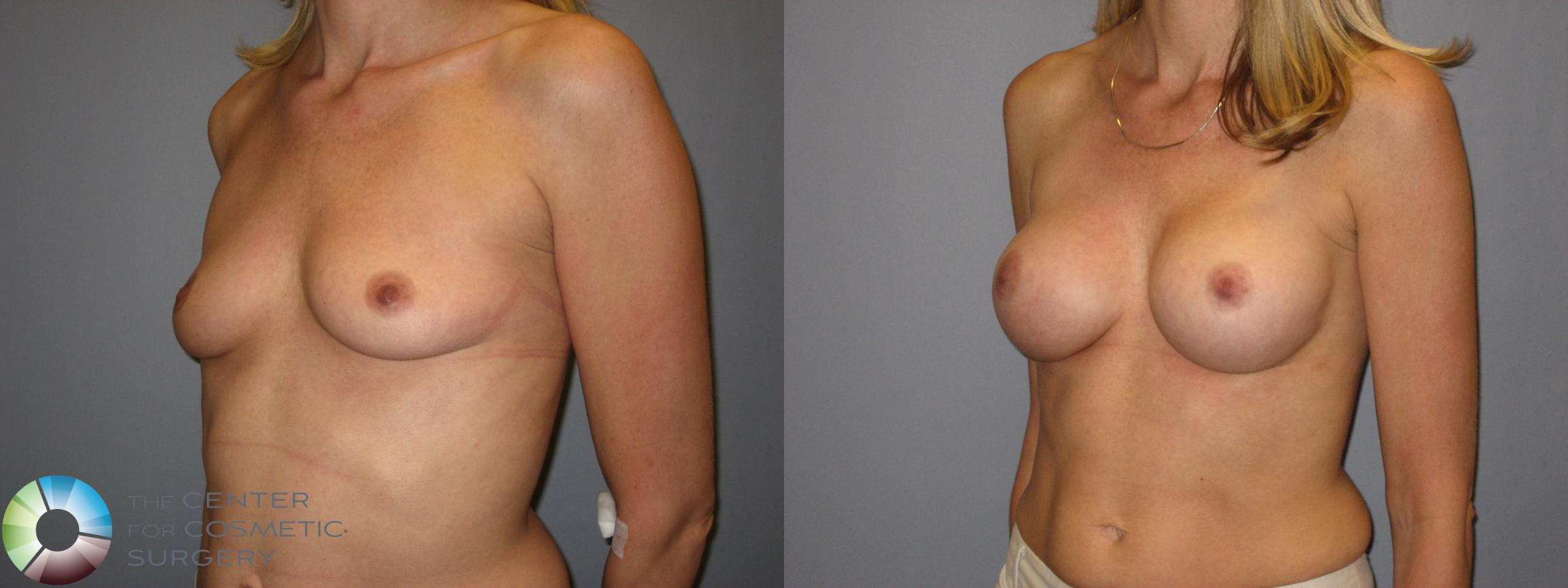 Breast Augmentation Case 223 Before & After View #2 | Golden, CO | The Center for Cosmetic Surgery
