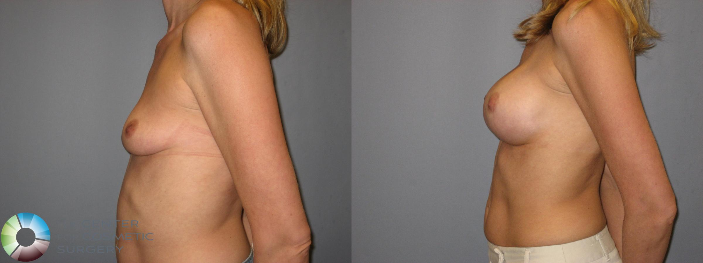 Breast Augmentation Case 223 Before & After View #3 | Golden, CO | The Center for Cosmetic Surgery