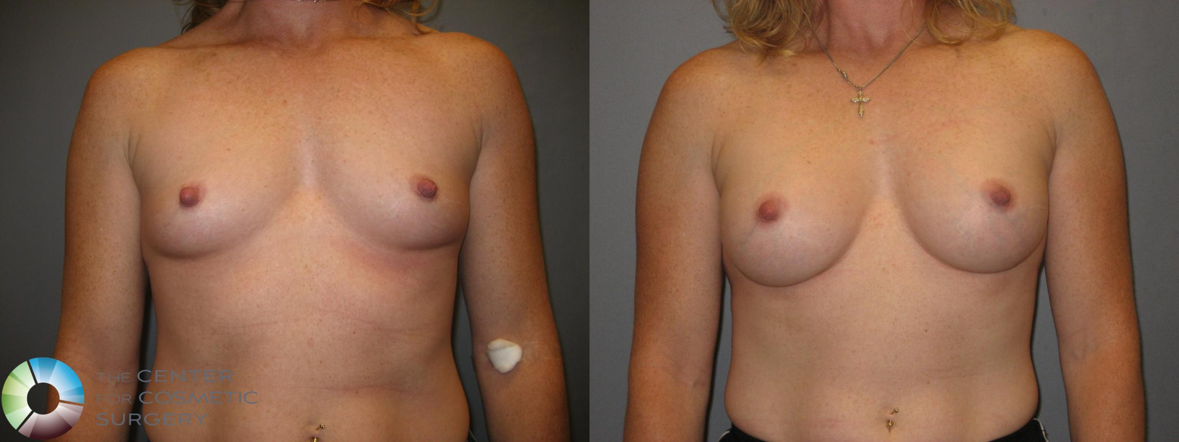 Breast Augmentation Case 230 Before & After View #1 | Golden, CO | The Center for Cosmetic Surgery