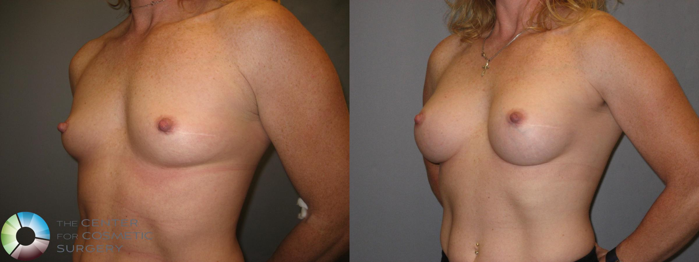 Breast Augmentation Case 230 Before & After View #2 | Golden, CO | The Center for Cosmetic Surgery