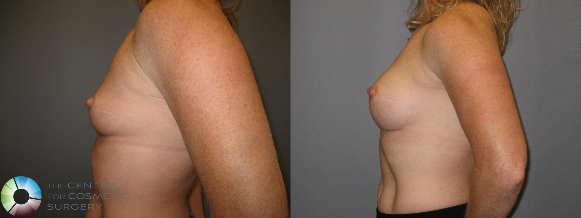 Breast Augmentation Case 230 Before & After View #3 | Golden, CO | The Center for Cosmetic Surgery