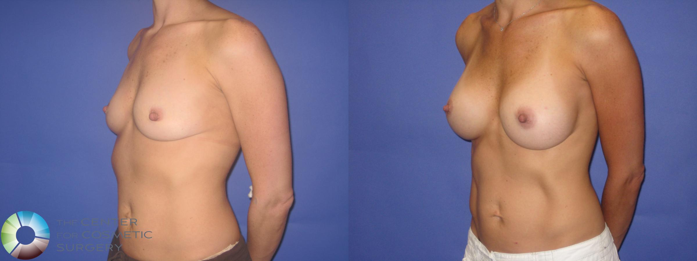 Breast Augmentation Case 246 Before & After View #2 | Golden, CO | The Center for Cosmetic Surgery
