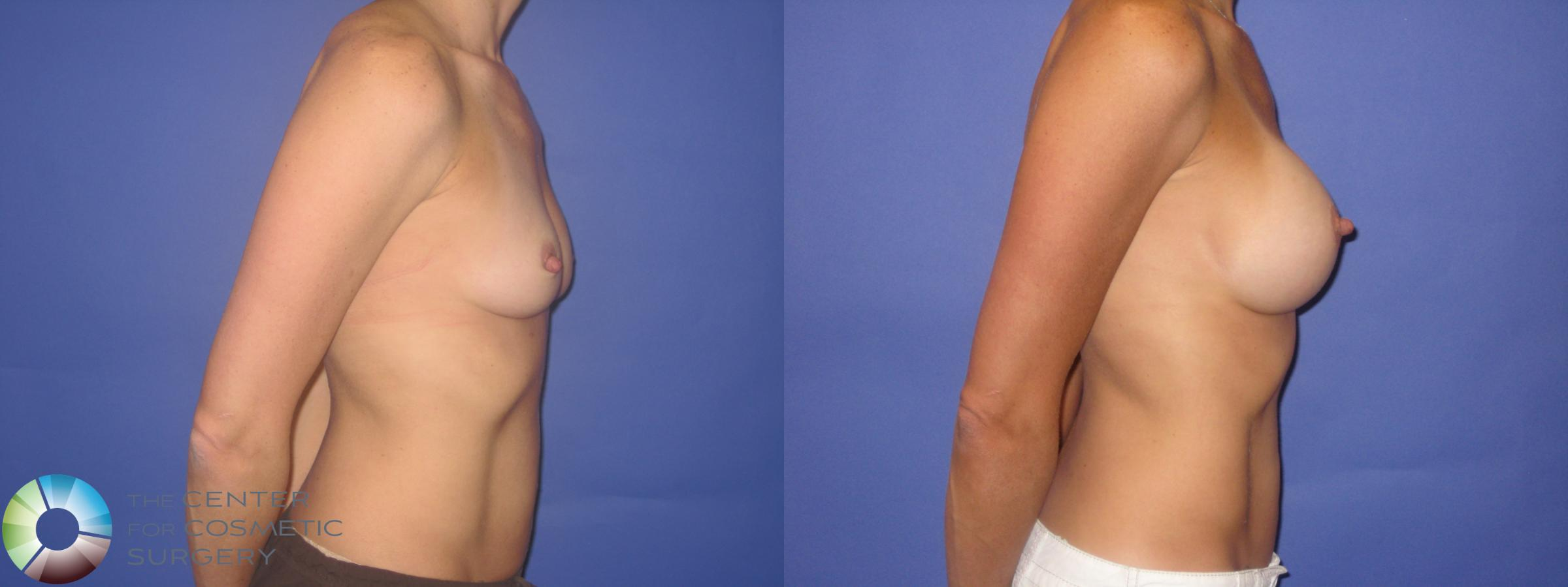 Breast Augmentation Case 246 Before & After View #3 | Golden, CO | The Center for Cosmetic Surgery