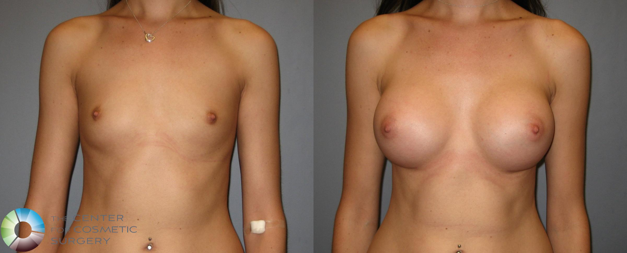 Breast Augmentation Case 247 Before & After View #2 | Golden, CO | The Center for Cosmetic Surgery