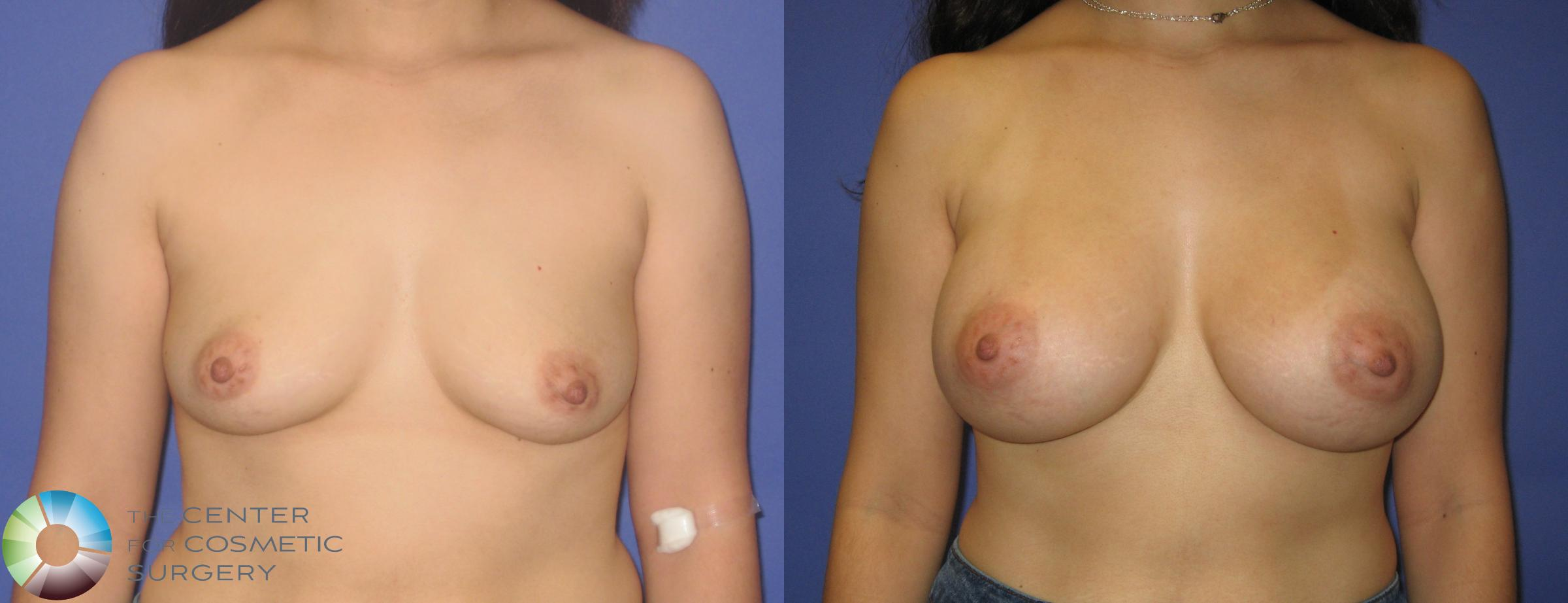 Breast Augmentation Case 273 Before & After View #1 | Golden, CO | The Center for Cosmetic Surgery