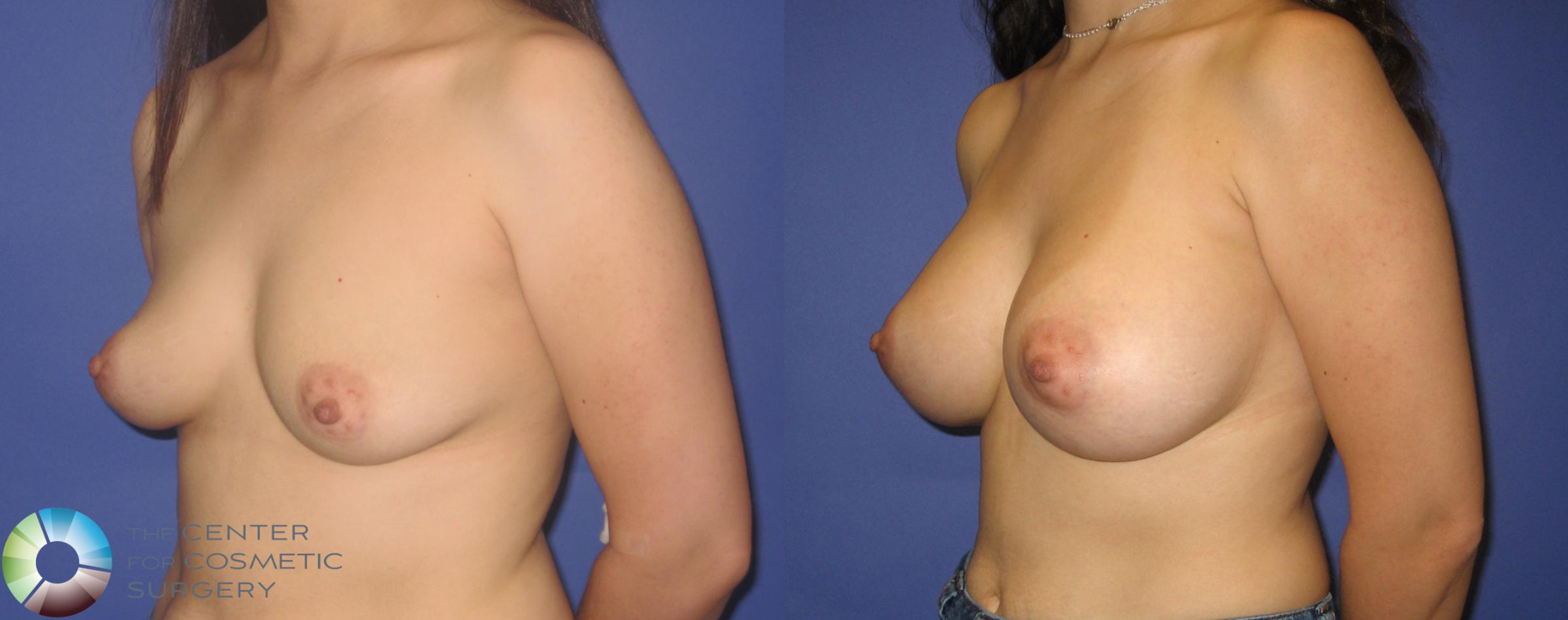 Breast Augmentation Case 273 Before & After View #2 | Golden, CO | The Center for Cosmetic Surgery