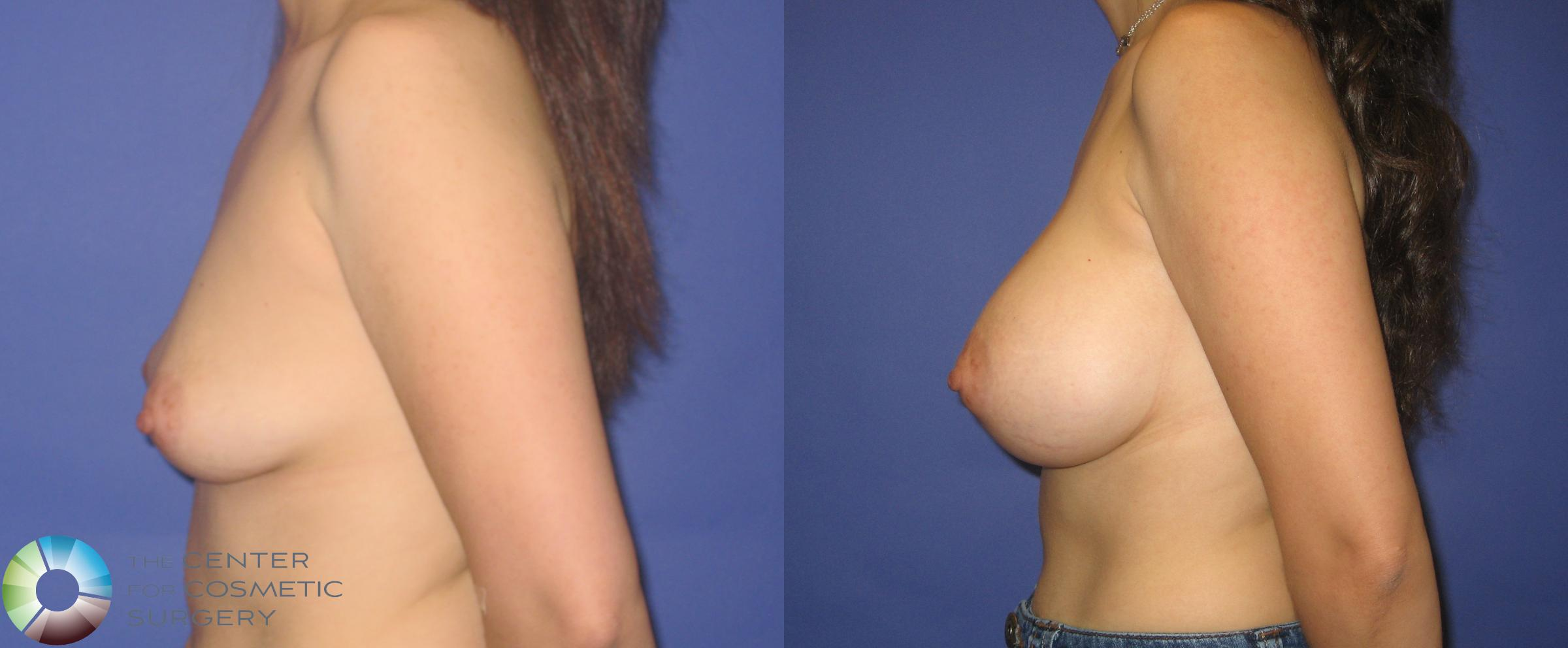 Breast Augmentation Case 273 Before & After View #3 | Golden, CO | The Center for Cosmetic Surgery