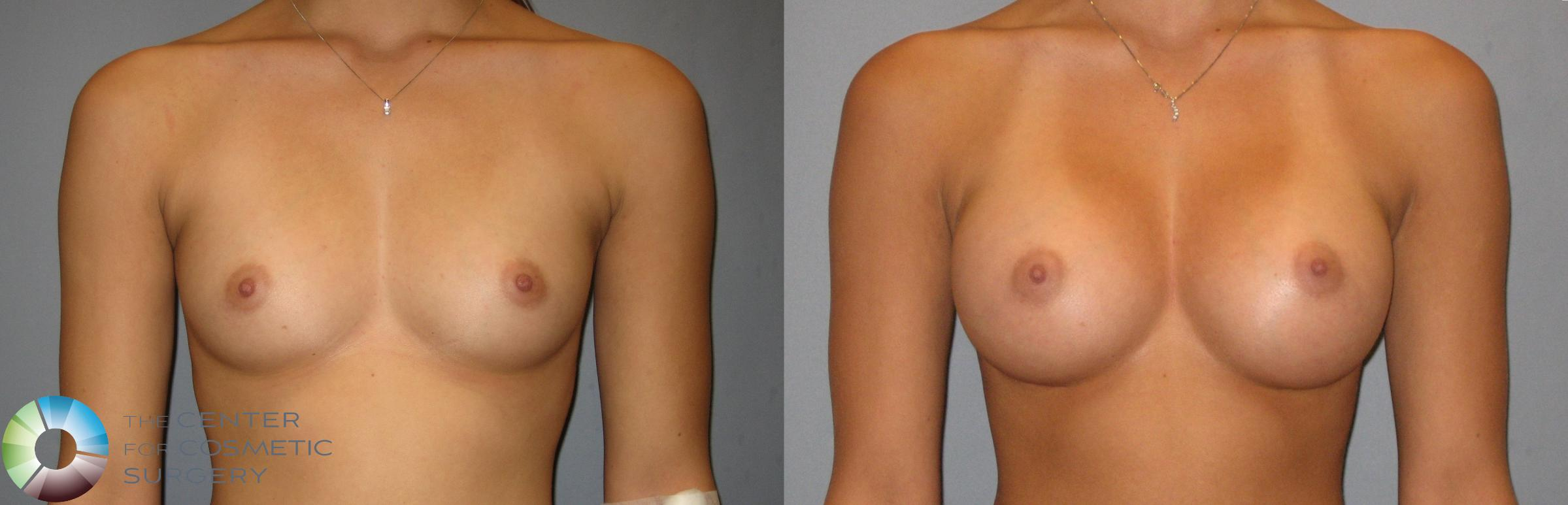 Breast Augmentation Case 275 Before & After View #1 | Golden, CO | The Center for Cosmetic Surgery