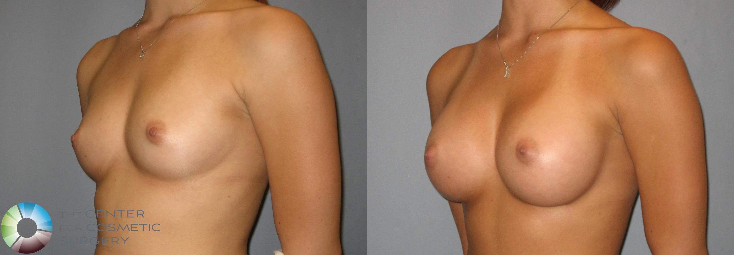 Breast Augmentation Case 275 Before & After View #2 | Golden, CO | The Center for Cosmetic Surgery