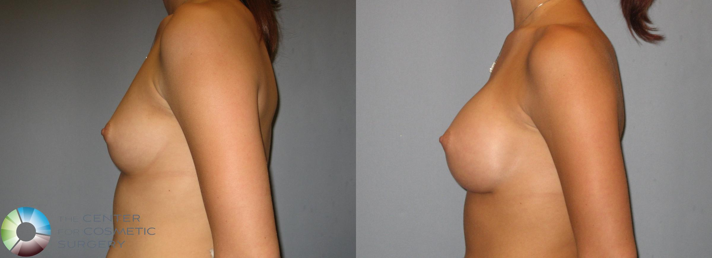 Breast Augmentation Case 275 Before & After View #3 | Golden, CO | The Center for Cosmetic Surgery