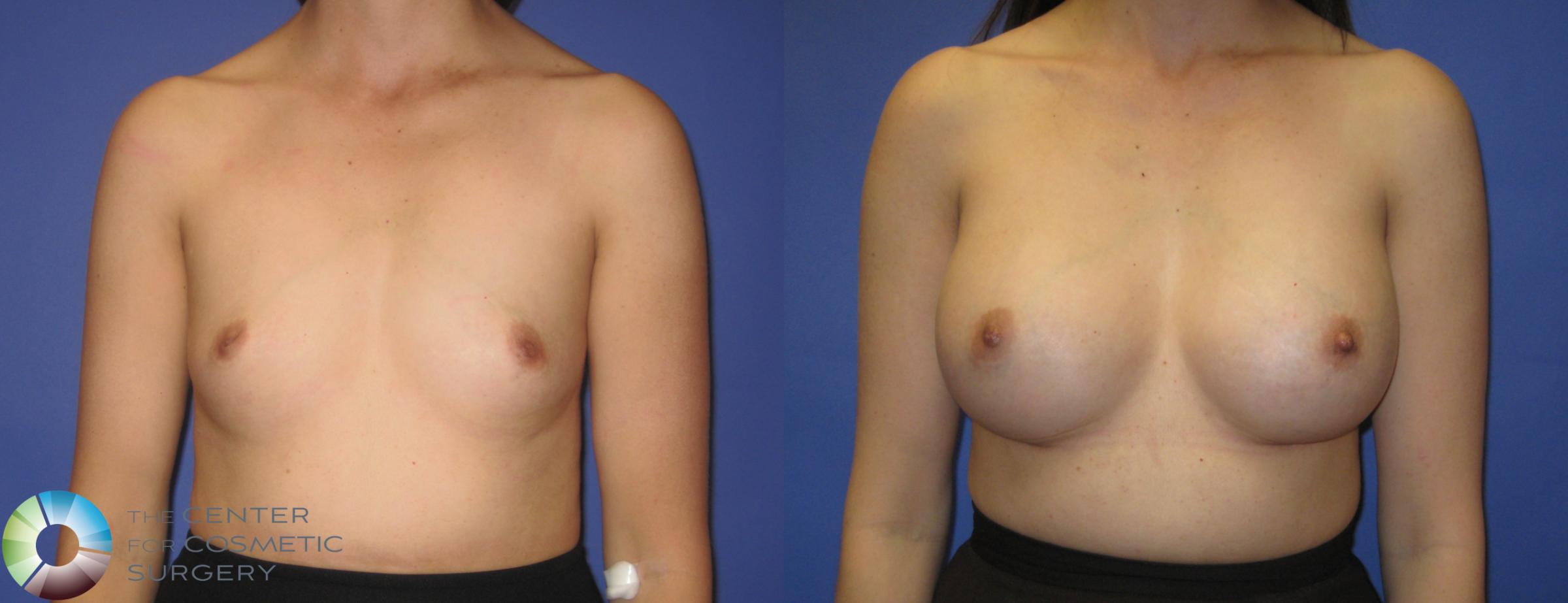 Breast Augmentation Case 290 Before & After View #1 | Golden, CO | The Center for Cosmetic Surgery