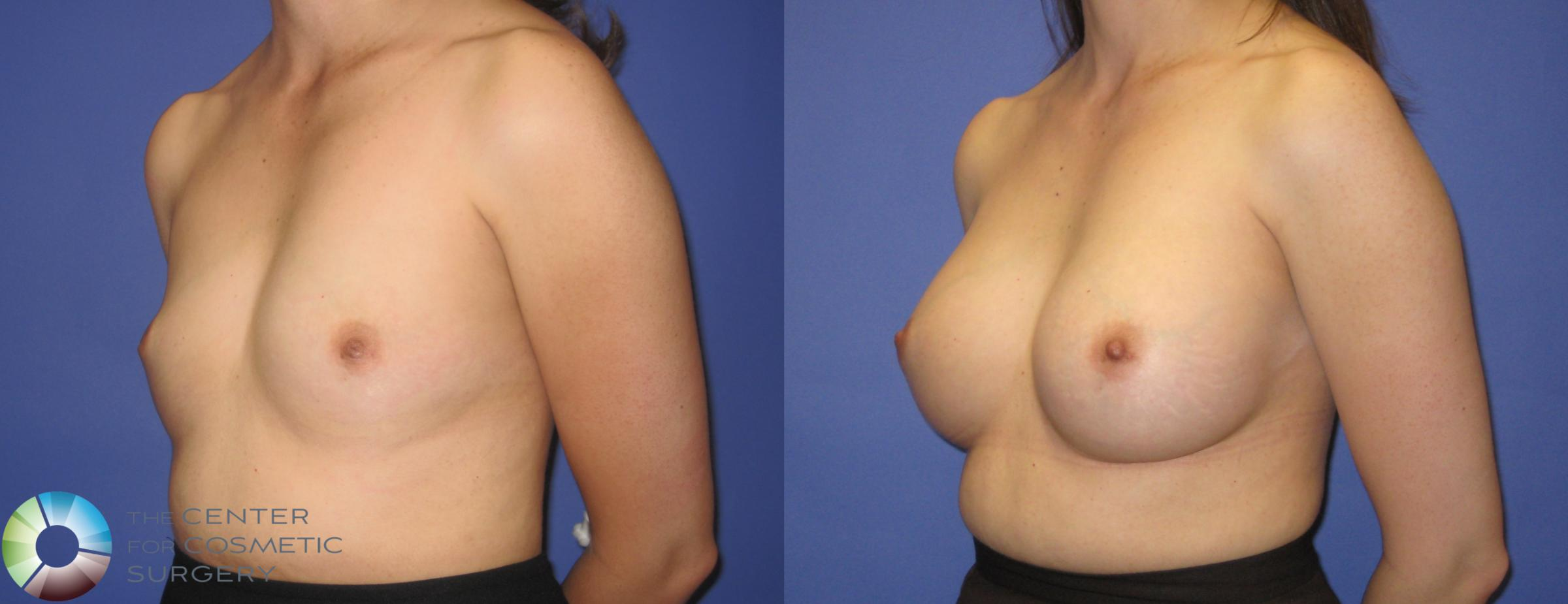 Breast Augmentation Case 290 Before & After View #2 | Golden, CO | The Center for Cosmetic Surgery