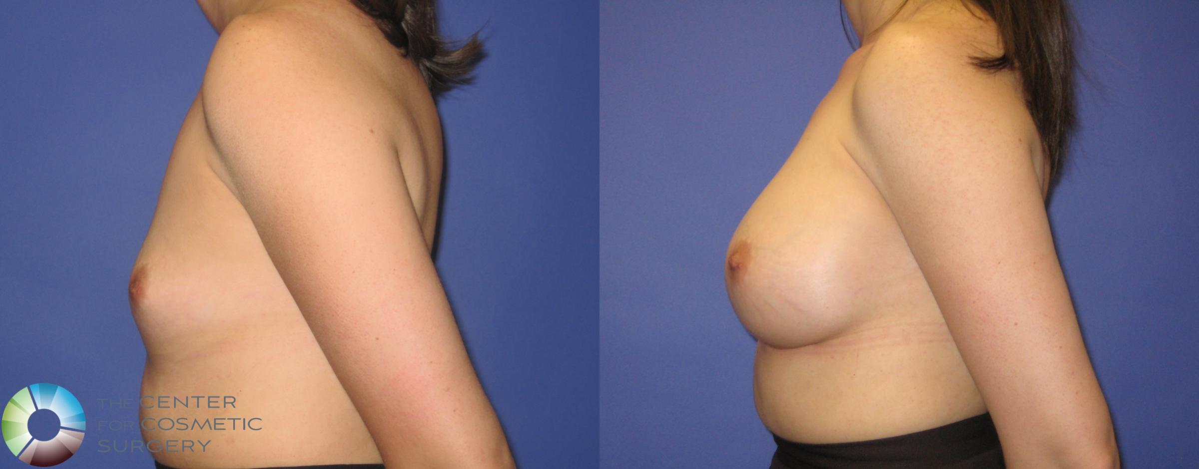 Breast Augmentation Case 290 Before & After View #3 | Golden, CO | The Center for Cosmetic Surgery