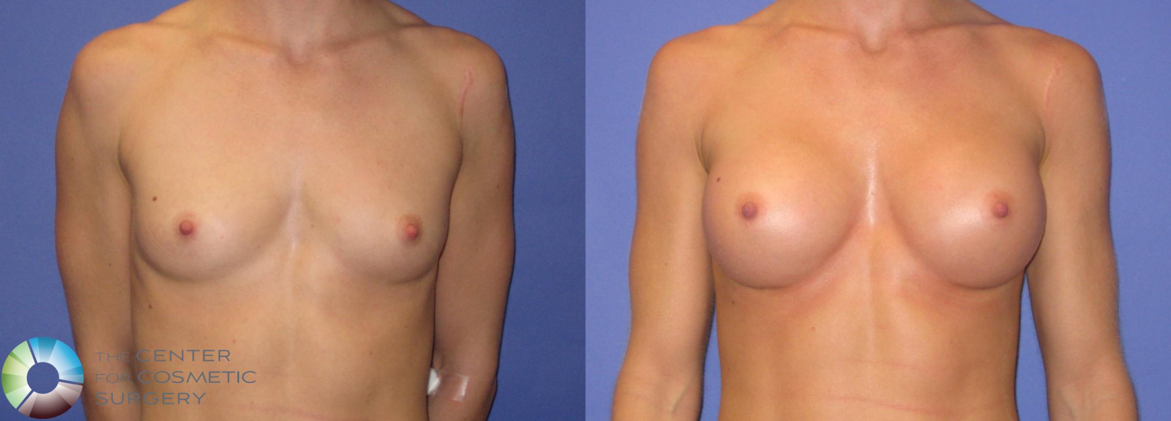 Breast Augmentation Case 307 Before & After View #1 | Golden, CO | The Center for Cosmetic Surgery