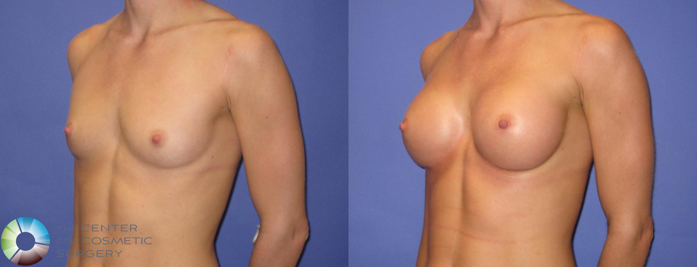 Breast Augmentation Case 307 Before & After View #2 | Golden, CO | The Center for Cosmetic Surgery