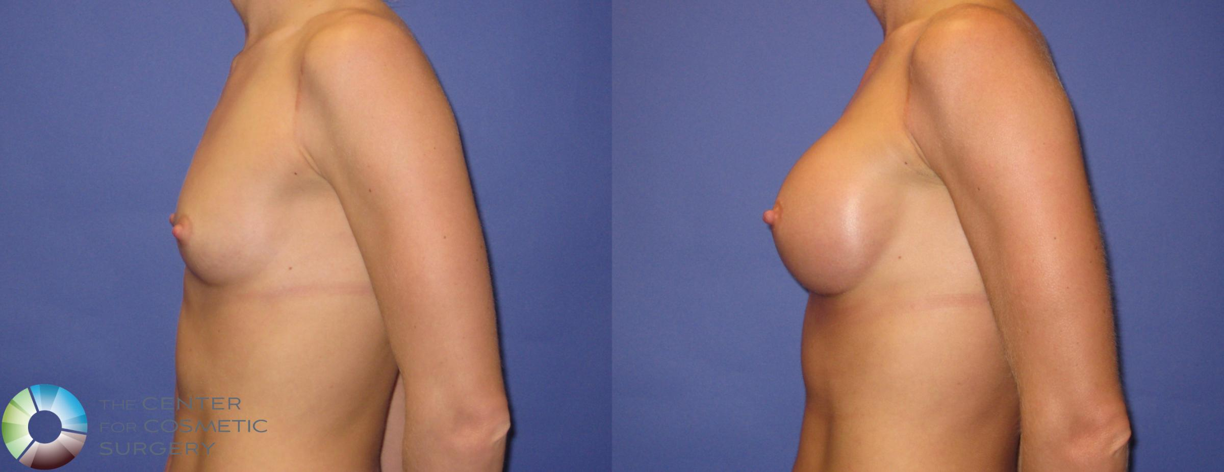 Breast Augmentation Case 307 Before & After View #3 | Golden, CO | The Center for Cosmetic Surgery