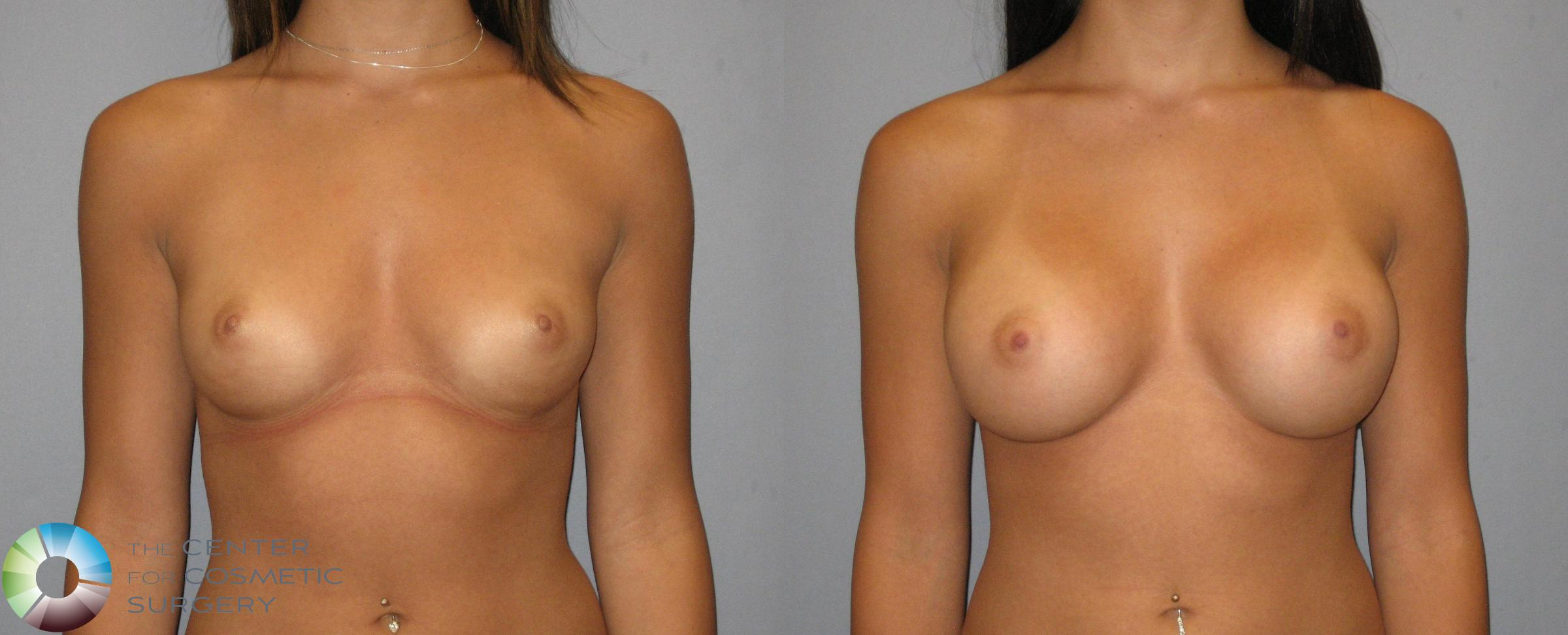 Breast Augmentation Case 318 Before & After View #1 | Golden, CO | The Center for Cosmetic Surgery