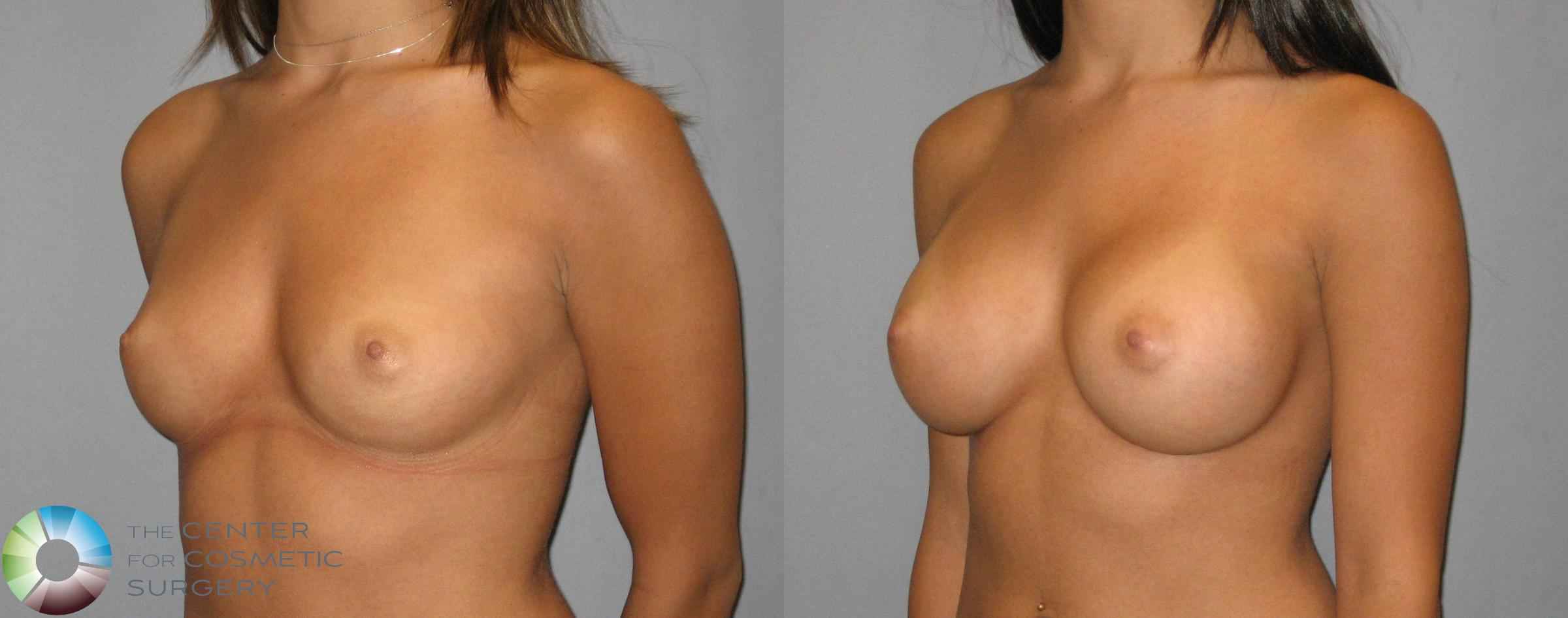 Breast Augmentation Case 318 Before & After View #2 | Golden, CO | The Center for Cosmetic Surgery