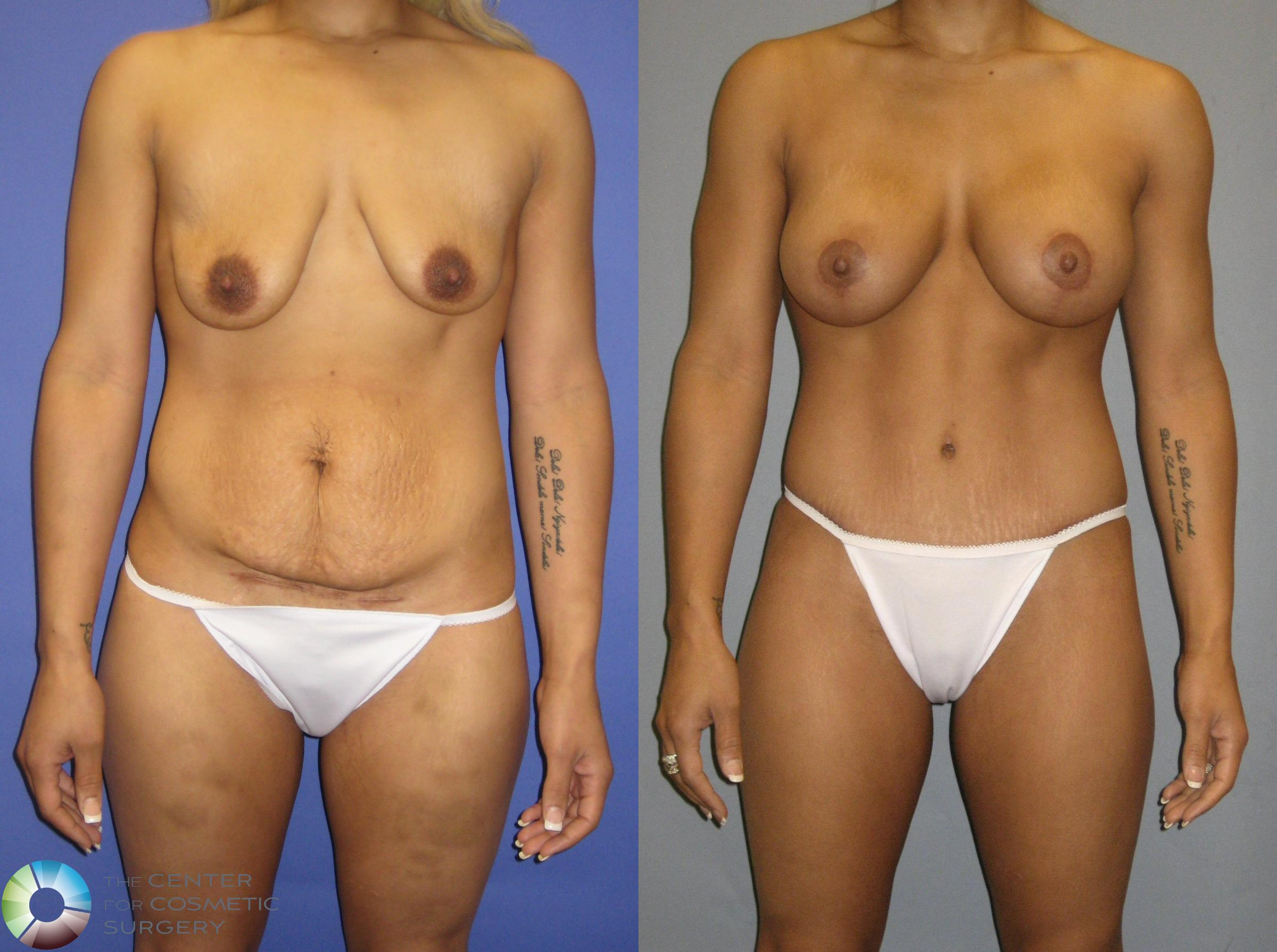 Breast Augmentation Case 325 Before & After View #1 | Denver & Golden, CO | The Center for Cosmetic Surgery