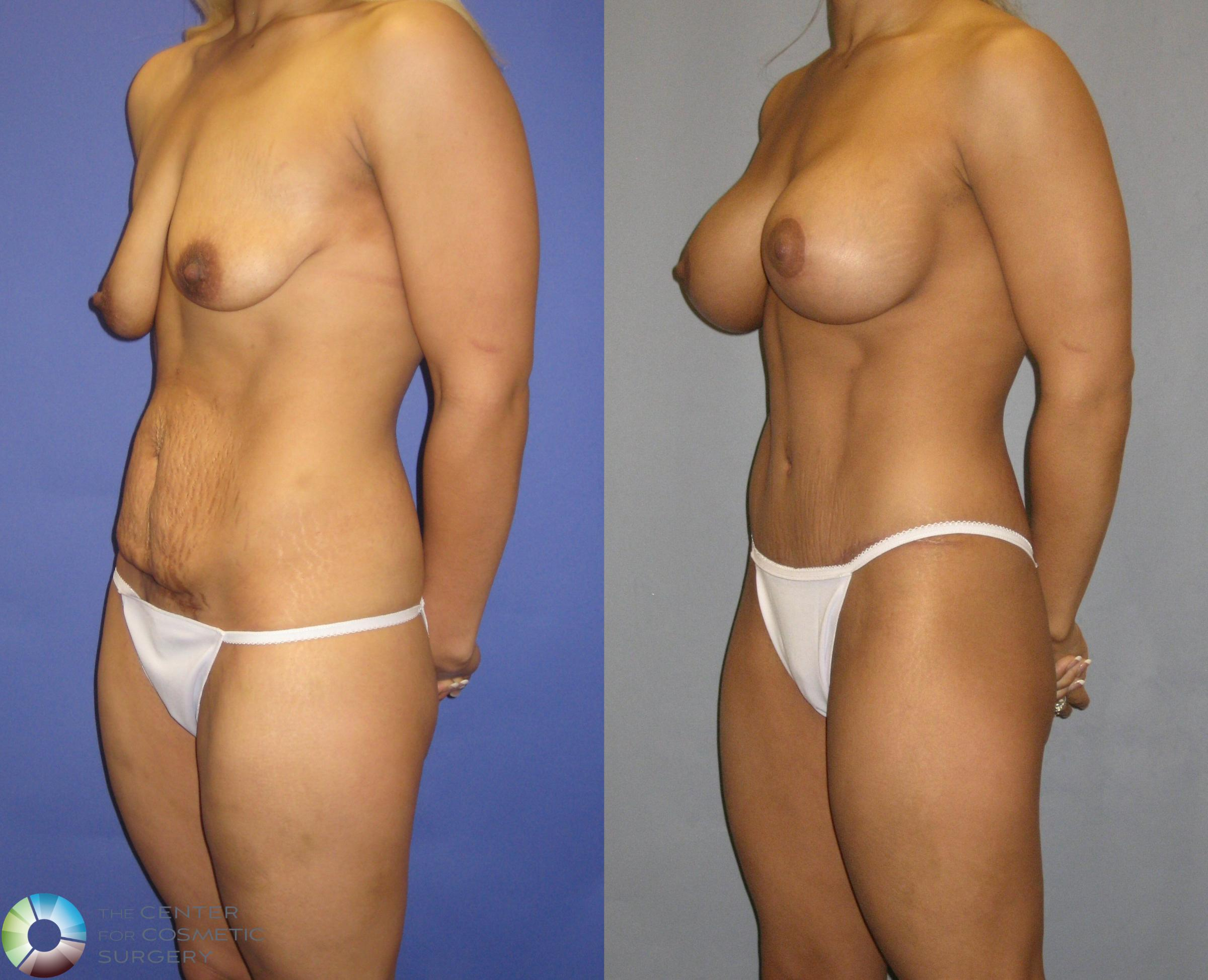 Breast Augmentation Case 325 Before & After View #2 | Golden, CO | The Center for Cosmetic Surgery
