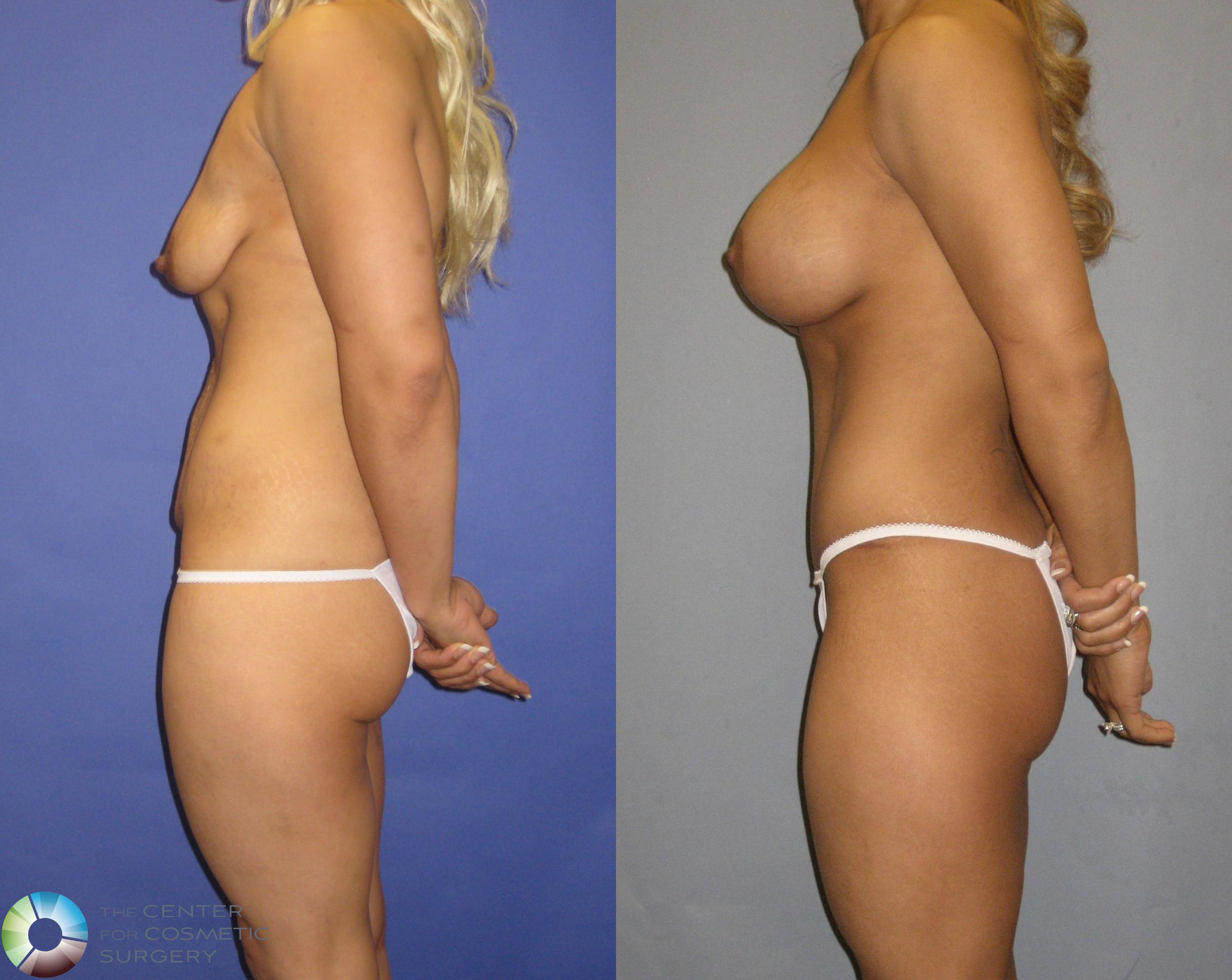 Breast Augmentation Case 325 Before & After View #3 | Golden, CO | The Center for Cosmetic Surgery