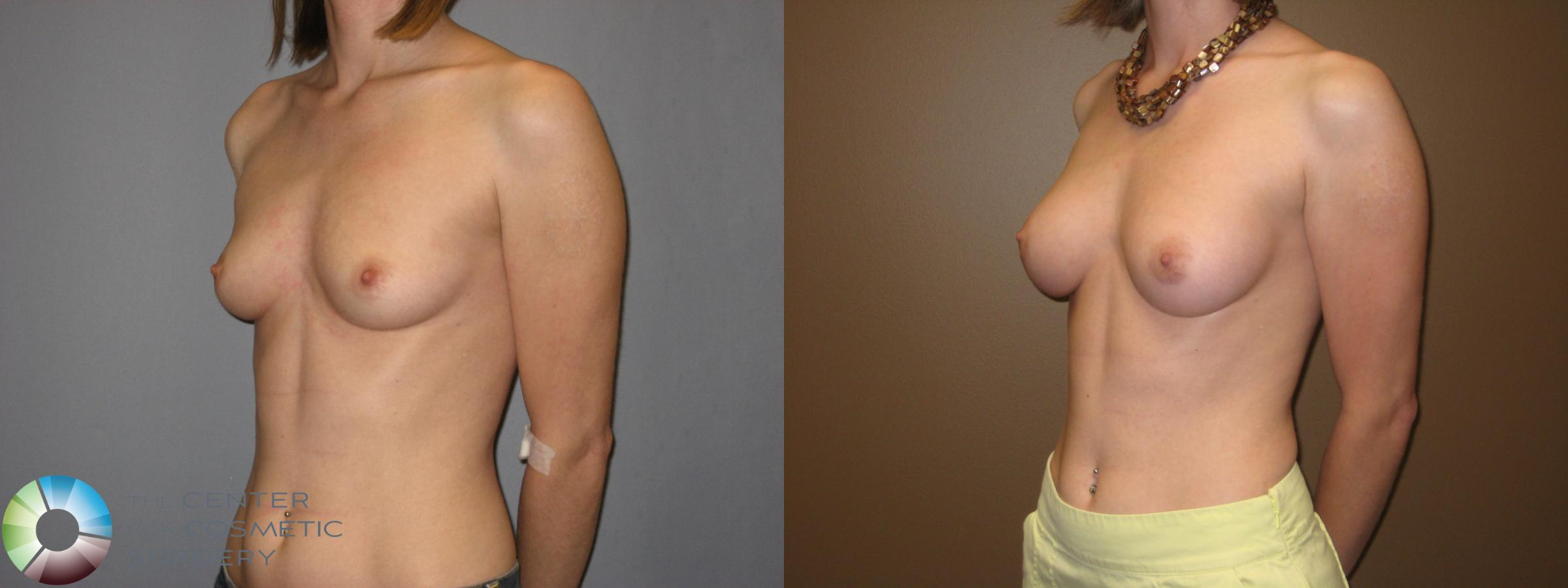 Breast Augmentation Case 331 Before & After View #2 | Golden, CO | The Center for Cosmetic Surgery