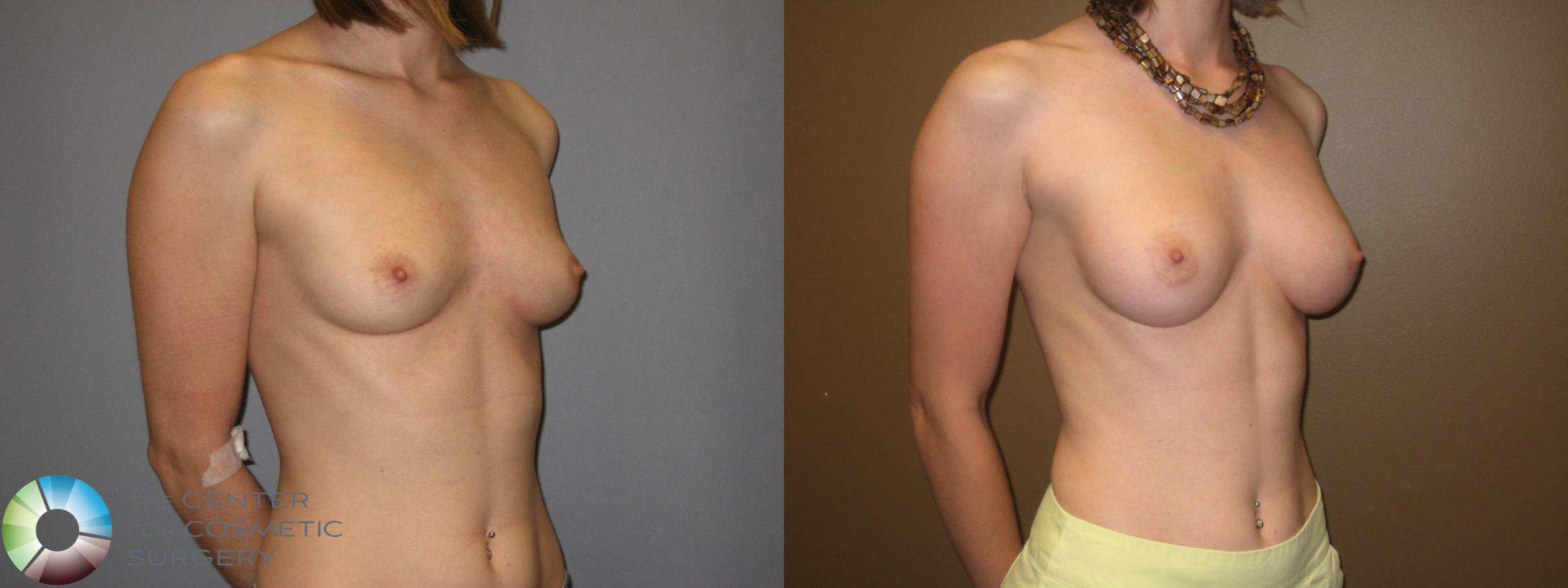 Breast Augmentation Case 331 Before & After View #4 | Golden, CO | The Center for Cosmetic Surgery