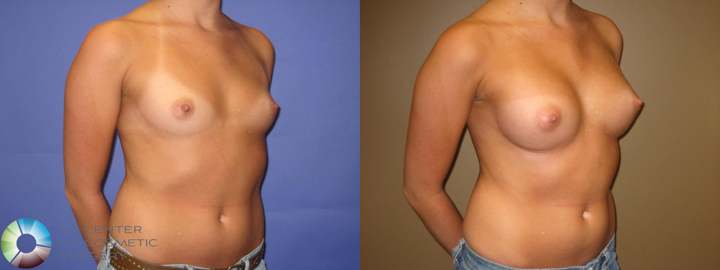 Breast Augmentation Case 332 Before & After View #3 | Golden, CO | The Center for Cosmetic Surgery