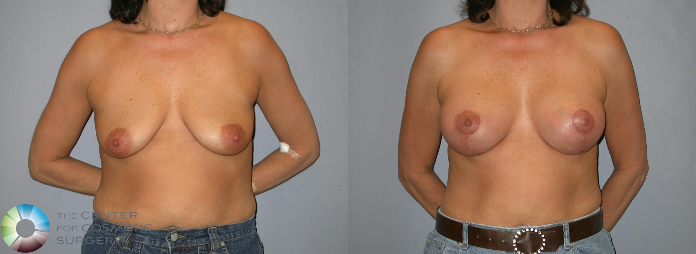 Breast Lift Case 345 Before & After View #1 | Golden, CO | The Center for Cosmetic Surgery