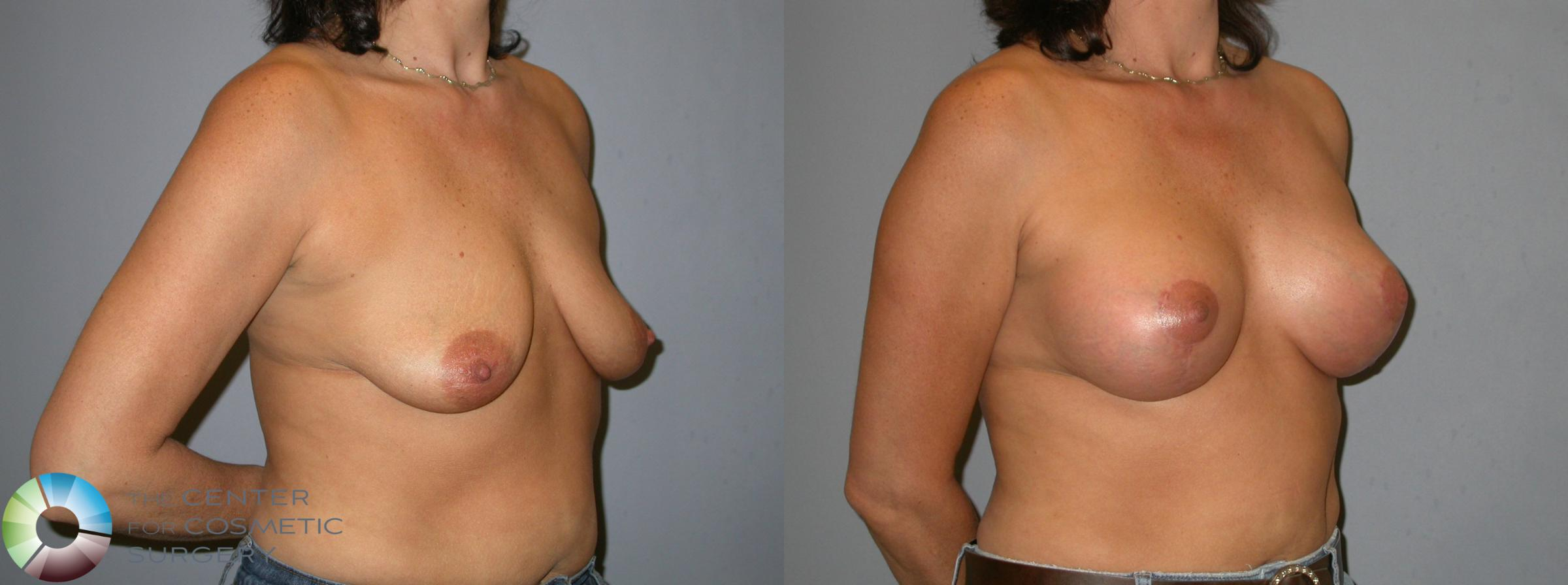 Breast Lift Case 345 Before & After View #2 | Golden, CO | The Center for Cosmetic Surgery