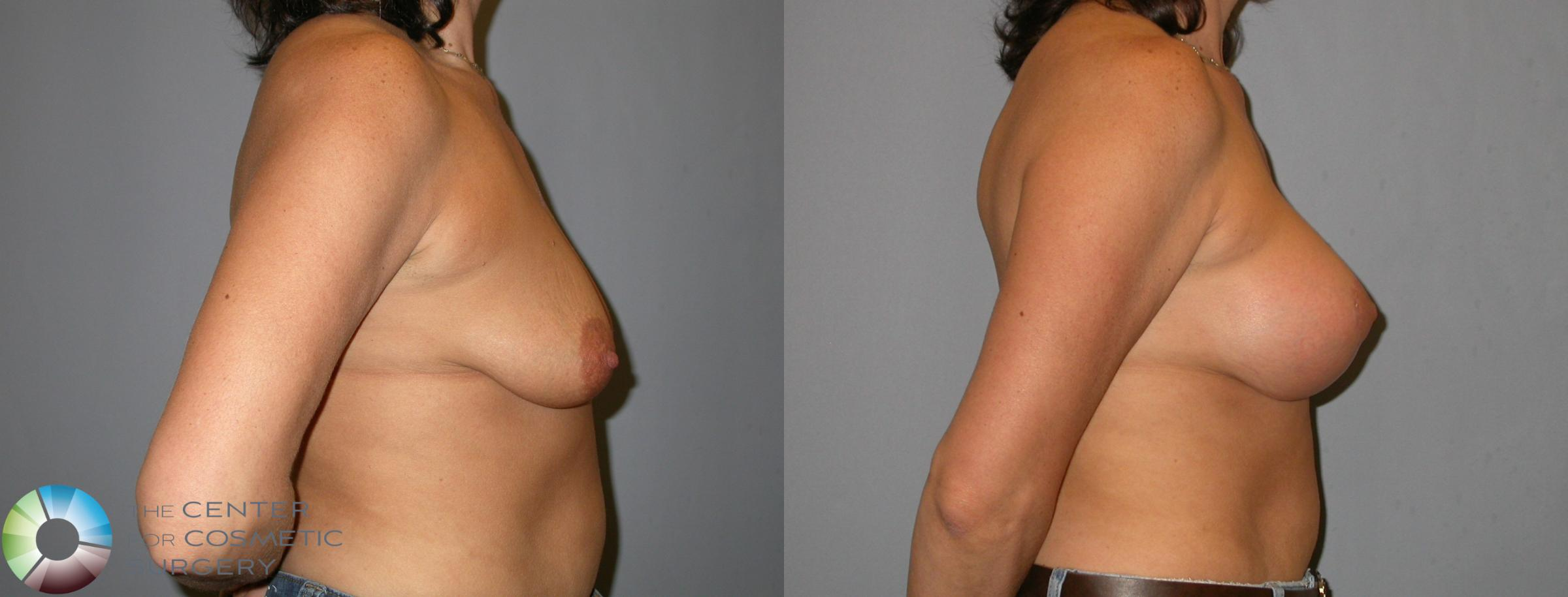 Breast Lift Case 345 Before & After View #3 | Golden, CO | The Center for Cosmetic Surgery