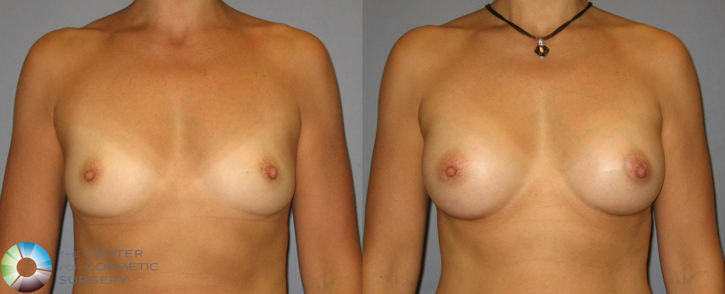 Breast Augmentation Case 351 Before & After View #1 | Golden, CO | The Center for Cosmetic Surgery