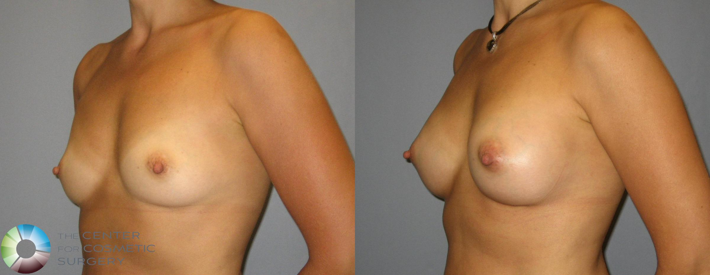 Breast Augmentation Case 351 Before & After View #2 | Golden, CO | The Center for Cosmetic Surgery