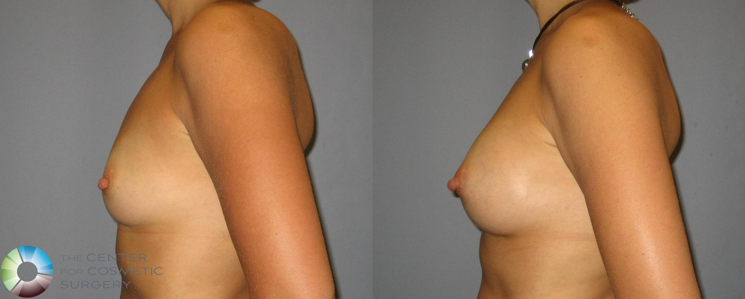 Breast Augmentation Case 351 Before & After View #3 | Golden, CO | The Center for Cosmetic Surgery