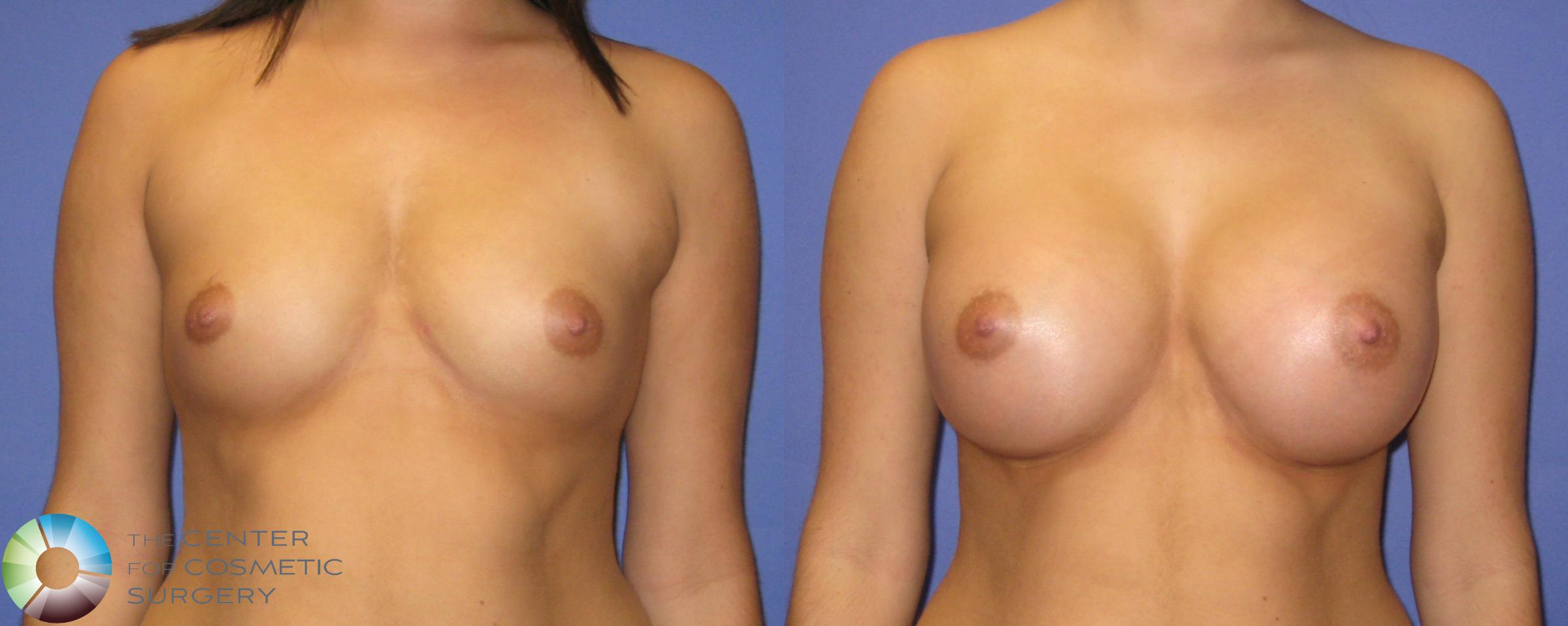 Breast Augmentation Case 352 Before & After View #1 | Golden, CO | The Center for Cosmetic Surgery