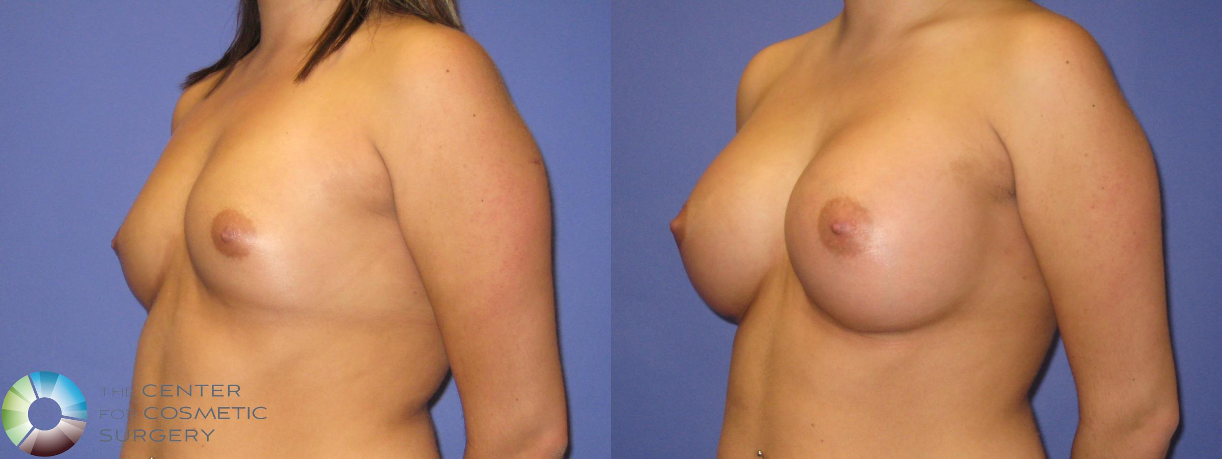 Breast Augmentation Case 352 Before & After View #2 | Golden, CO | The Center for Cosmetic Surgery