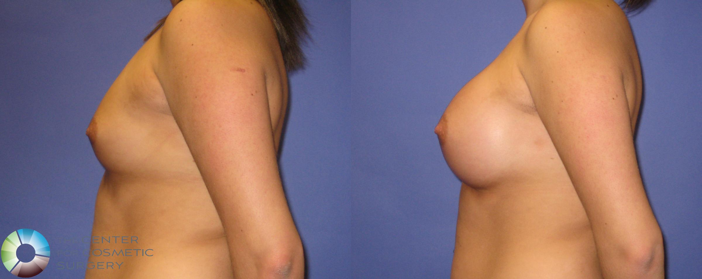 Breast Augmentation Case 352 Before & After View #3 | Golden, CO | The Center for Cosmetic Surgery