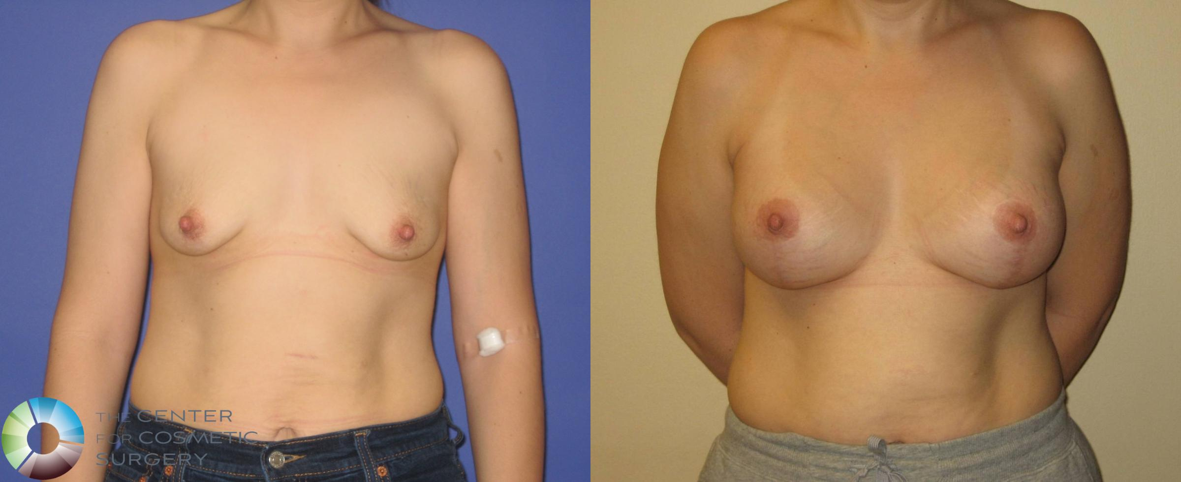Breast Augmentation Case 355 Before & After View #1 | Golden, CO | The Center for Cosmetic Surgery
