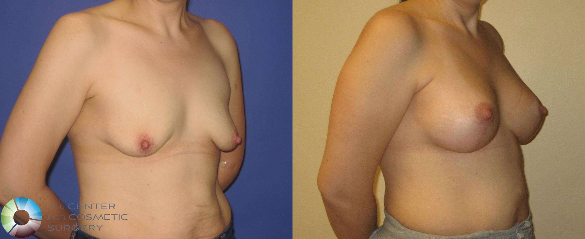 Breast Augmentation Case 355 Before & After View #2 | Golden, CO | The Center for Cosmetic Surgery