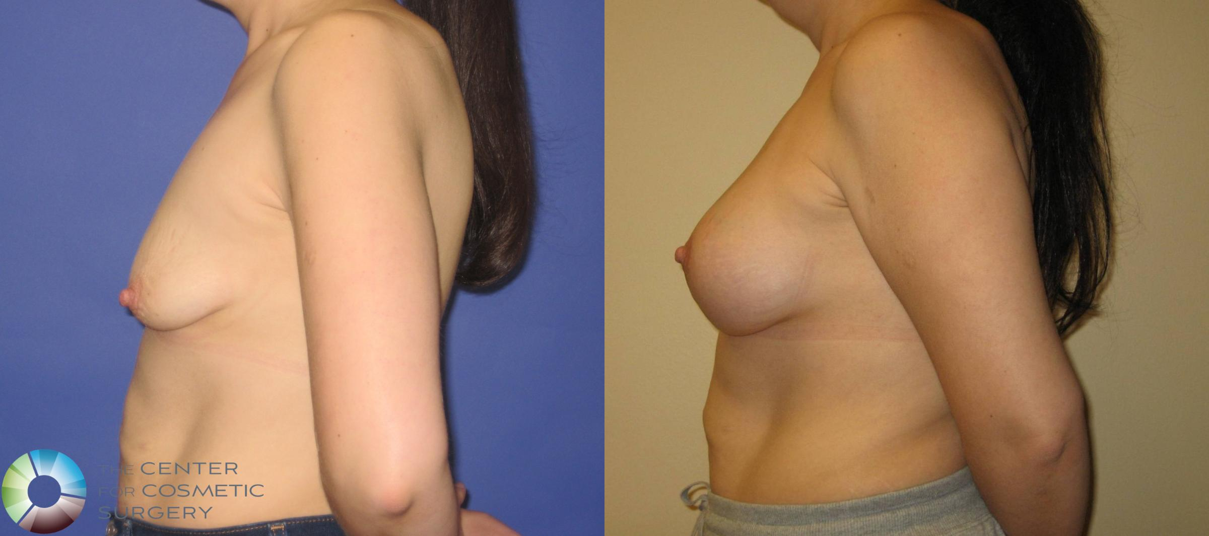 Breast Augmentation Case 355 Before & After View #3 | Golden, CO | The Center for Cosmetic Surgery