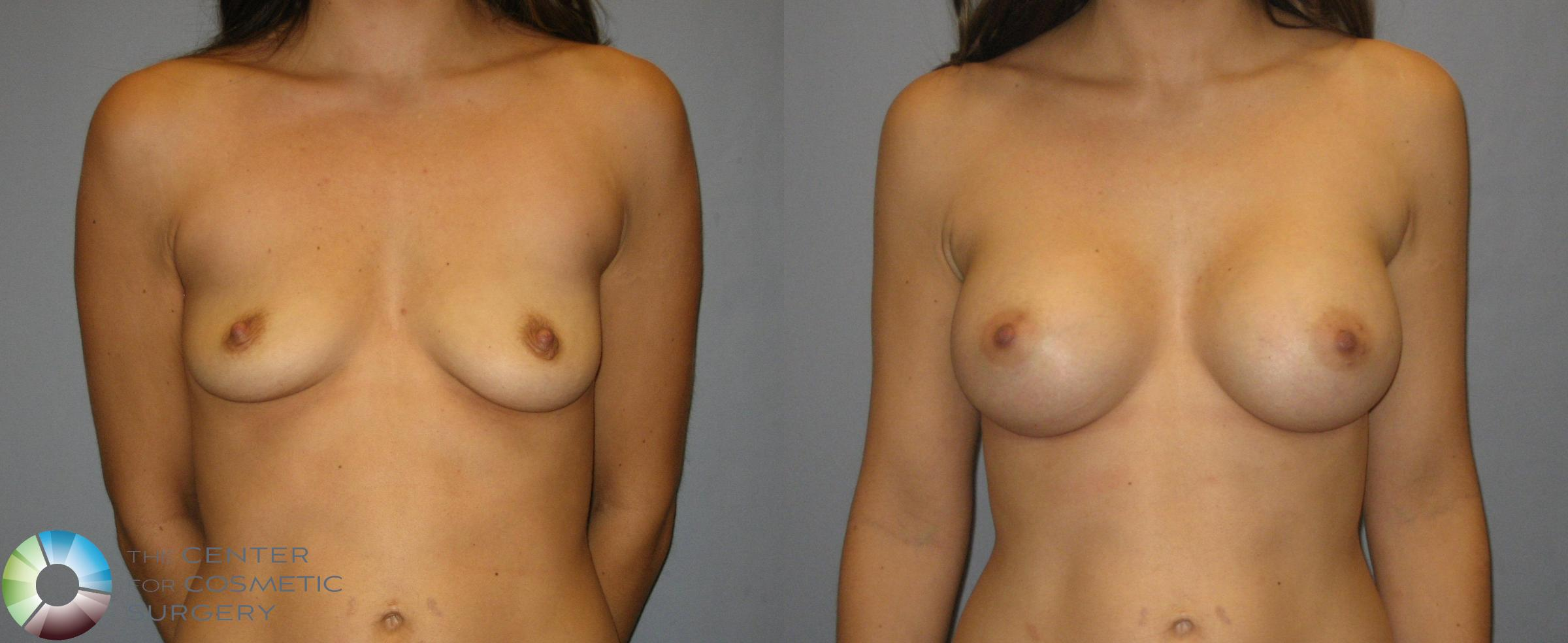 Breast Augmentation Case 357 Before & After View #1 | Golden, CO | The Center for Cosmetic Surgery