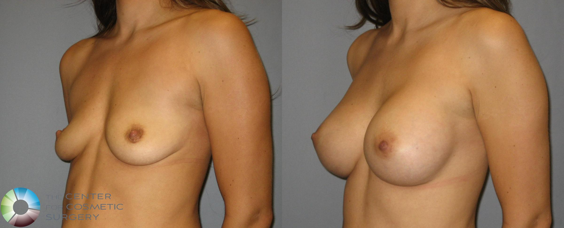 Breast Augmentation Case 357 Before & After View #2 | Golden, CO | The Center for Cosmetic Surgery