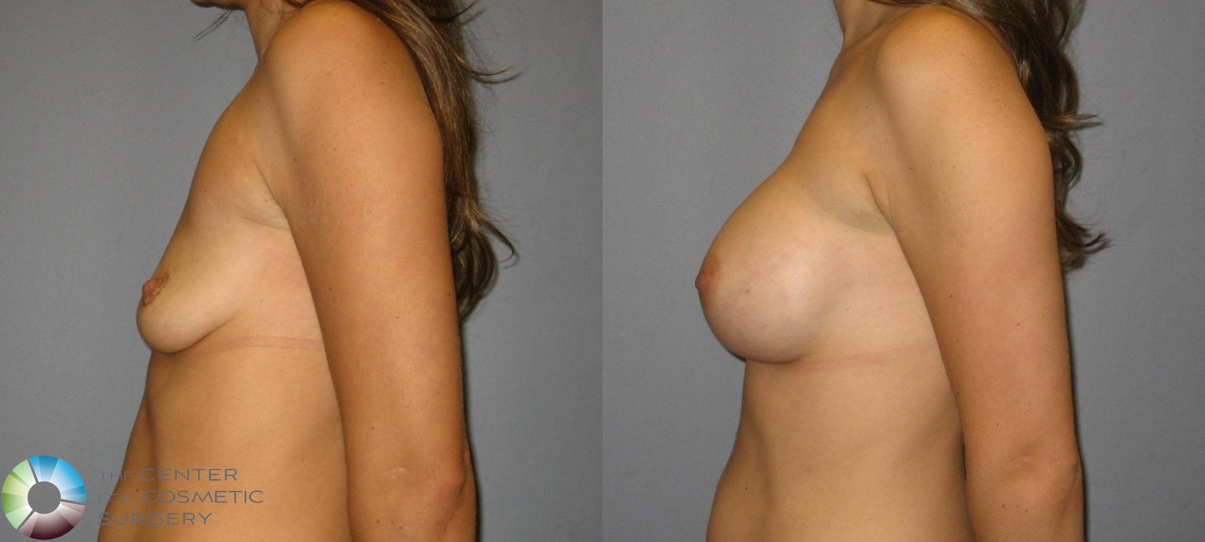 Breast Augmentation Case 357 Before & After View #3 | Golden, CO | The Center for Cosmetic Surgery
