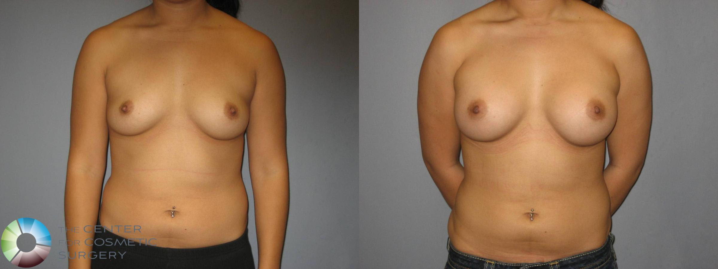 Breast Augmentation Case 360 Before & After View #1 | Golden, CO | The Center for Cosmetic Surgery