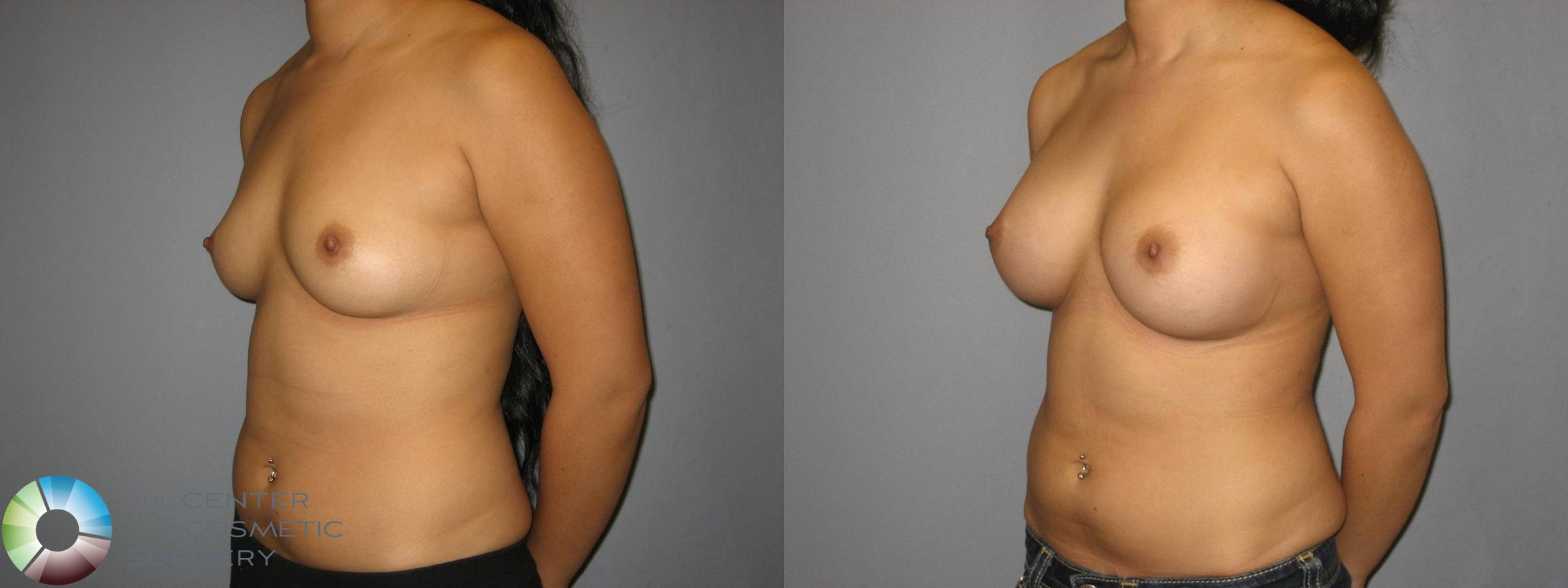 Breast Augmentation Case 360 Before & After View #2 | Golden, CO | The Center for Cosmetic Surgery